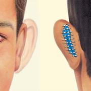 Cicatrices Otoplastia