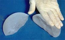 Implante mamario de gel de silicona cohesivo